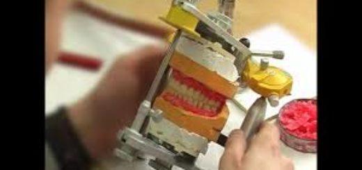 Экспертиза зубных протезов