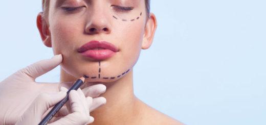 Независимая экспертиза результатов пластическая операция верхней губы