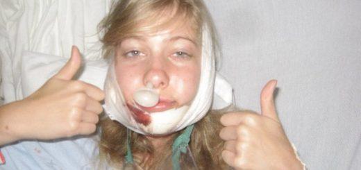 Независимая экспертиза результатов пластической хирургии челюсти