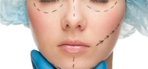 Независимая экспертиза результатов пластической операции по увеличению глаз